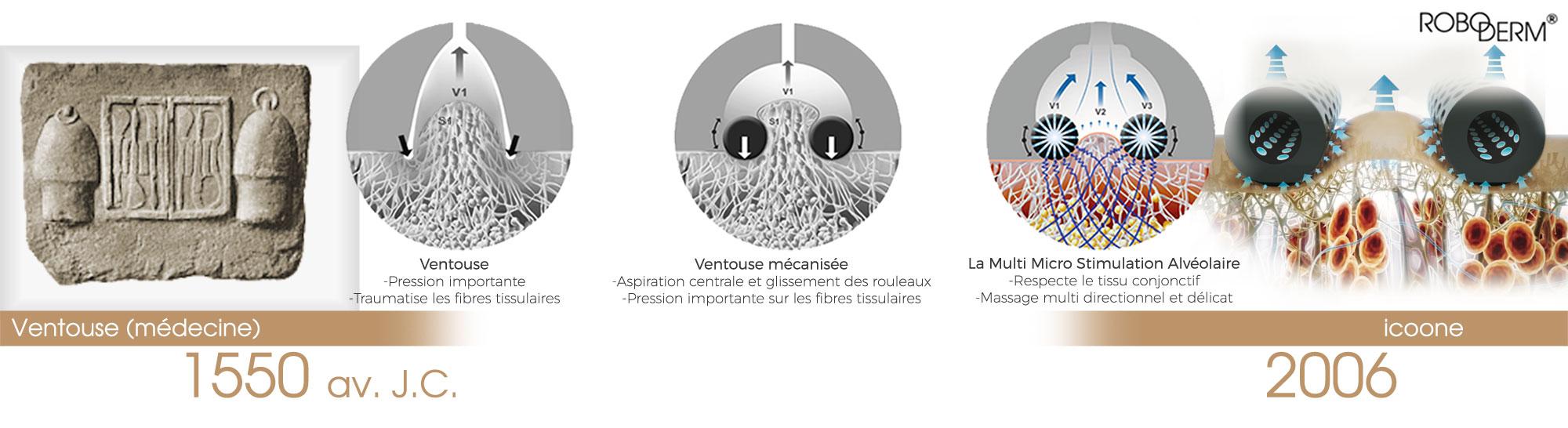 L'évolution de la vacuothérapie