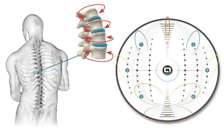 plateforme motorisee kine - osteo